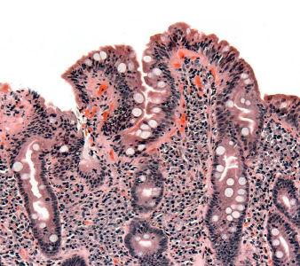 Coeliac_pathology wikipedia