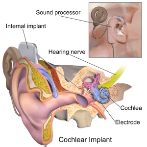 1024px-Blausen_0244_CochlearImplant_01