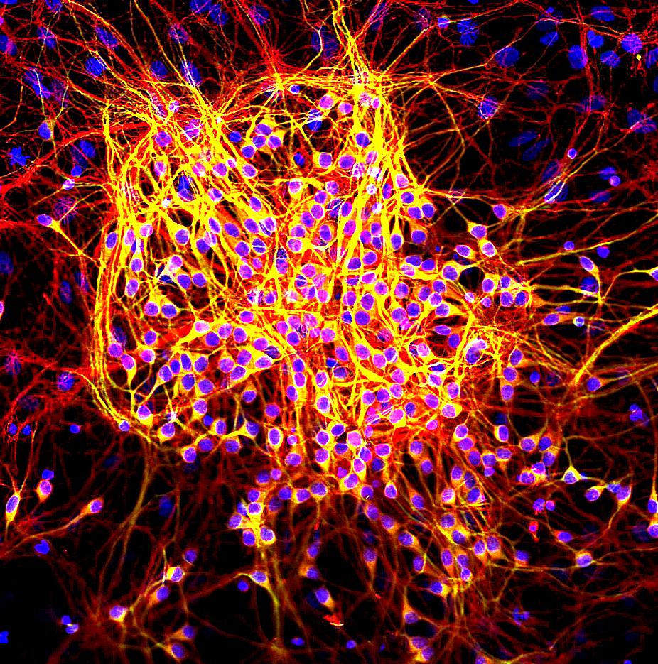 MAP2-tau_in_neurons